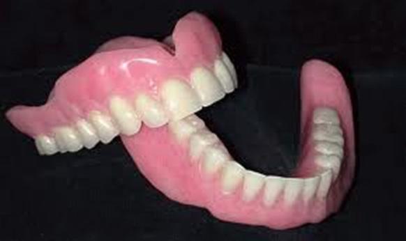 Накладки на зубы своими руками